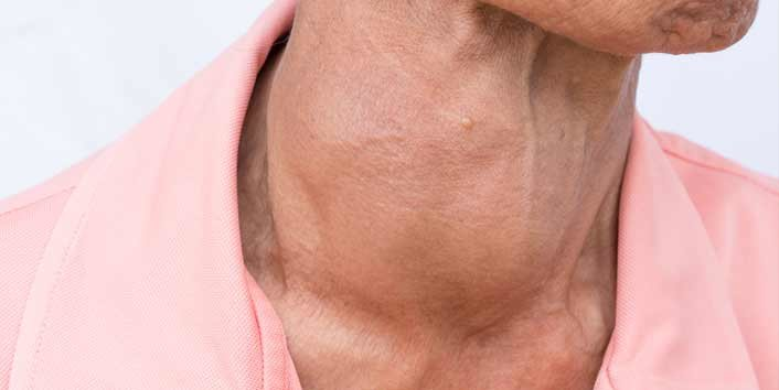 People With Hyperthyroidism Loses Weight Drastically